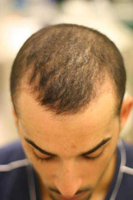 hair thinning at temples and top patient weblog my story explaining my surgery with dr