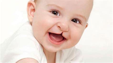 imagenes de niños que nacen con malformaciones descubre por qu 233 tu hijo podr 237 a nacer con labio leporino