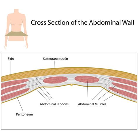 lower right side abdominal pain after c section cesarean adhesions symptoms answers on healthtap