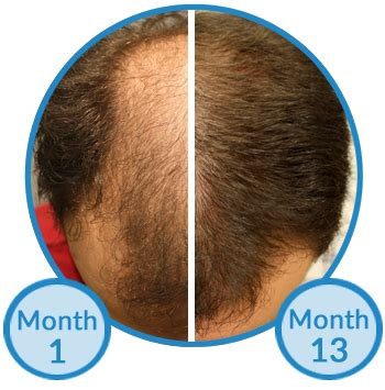 rogaine success stories is minoxidil treatment for hair growth beneficial see