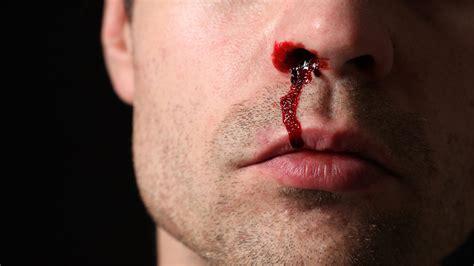 mal di testa sangue dal naso sangue dal naso in bambini e adulti cause e cosa fare