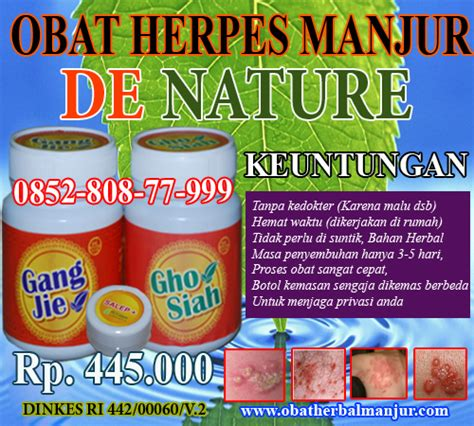 Obat Gatal Herpes pengobatan herpes simplexs obat herpes simplexs cara