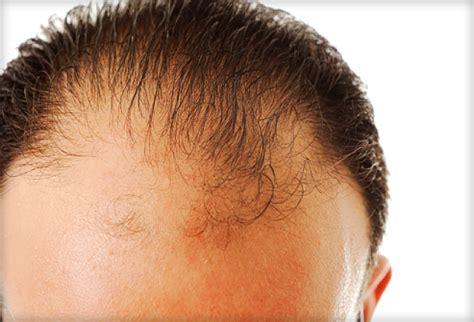 hair loss hair transplant and hair restoration advice hair regrowth gallery
