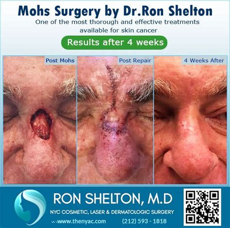 reconstruction after mohs surgery books best 25 mohs surgery ideas on esthetics