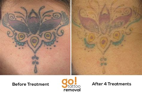 finger tattoo peeling 4 laser tattoo removal treatments and we can now see the
