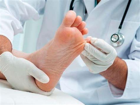tratamiento de hongos y megabacterias cuidado con los hongos en los pies c 243 mo prevenir y tratar