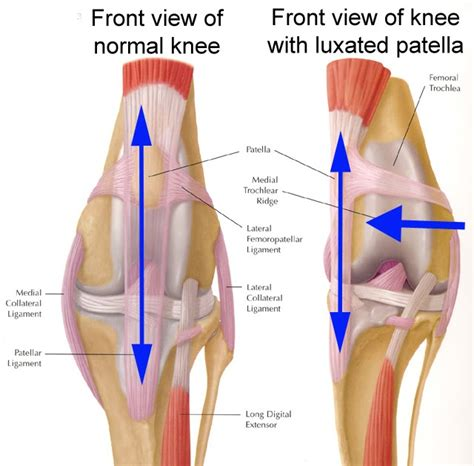 7 Common Style Related Injuries by Common Knee Injuries Pilates Patio