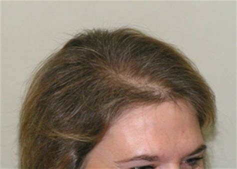 hair loss pattern pcos pcos hair thinning remedy