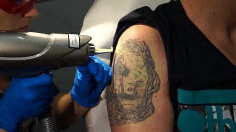 laser tattoo removal puerto rico laser de eliminacion de tatuajes en laser