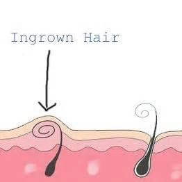 ingrown hair on hour panty line how to remove an ingrown hair on your bikini line clear