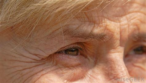 with wrinkled what causes forehead wrinkles with pictures