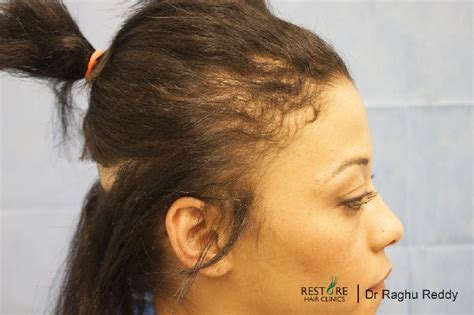 weave styles for alopecia patients weave styles for
