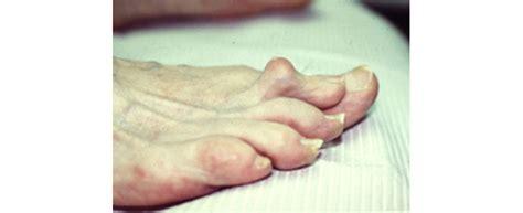 Common Foot Problems by Common Foot Problems Foot Care