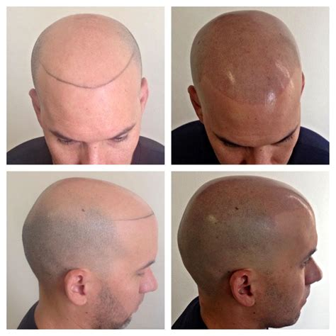 scalp micropigmentation hair tattoos in phoenix