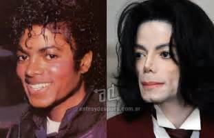 michael jackson vorher nachher 187 with plastic surgery before and after