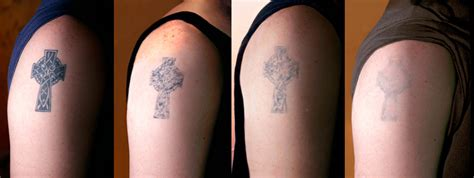 laser tattoo removal fort lauderdale removal shop in miami fort lauderdale salvation
