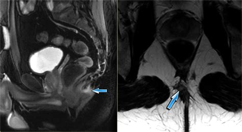 pilonidal cyst mri the radiology assistant rectum perianal fistulas