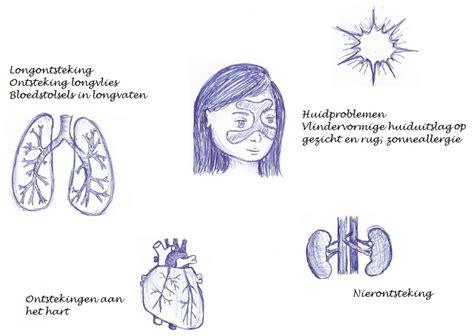 psychopharmacologyuvt licensed for non commercial use only sle en depressie