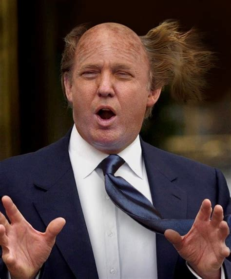 Will Donald To Shave His by Ask A Dude Who Is Getting Hair Transplant Surgery Next
