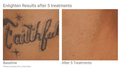 tattoo removal seattle tattoo removal in seattle at well medical arts