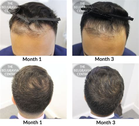month by month hair growth pictures belgravia hair loss blog