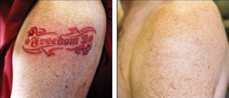 tca tattoo removal reviews white ink