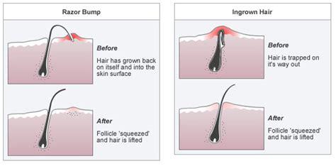 best exfoliator for ingrown hairs on face diy ingrown hair cream to get rid of nasty red bumps