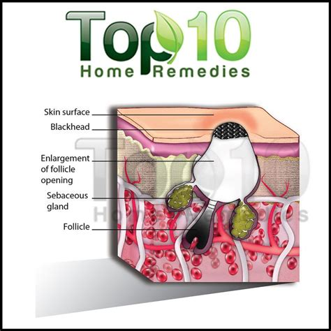 1000 ideas about treatment for blackheads on