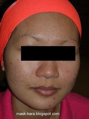 Acne Foundation Sand Wajah Cantik 1 cantik bersama scc di arau perlis pada 6