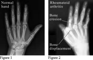 x of rheumatoid arthritis in the of