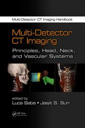 multi detector ct imaging principles neck and vascular systems books multi detector ct imaging ebook by luca saba 9781439893845
