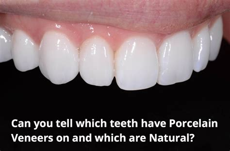 11 best porcelain veneers images top perth dentist reveals 10 things you must about