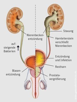 wo liegen die nieren bilder akute nierenbeckenentz 252 ndung bahnhof apotheke besigheim