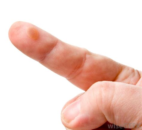 to finger how do i treat a finger infection with pictures