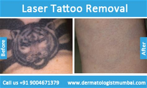 tattoo removal mumbai tattoo removal in mumbai laser tattoo removal