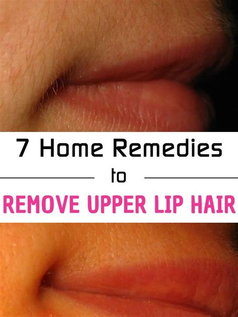 how much to get hair removal for upper lip 17 best ideas about upper lip hair removal on pinterest