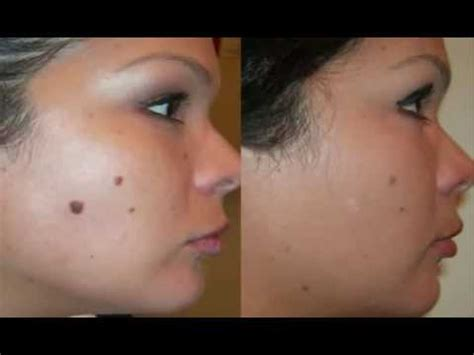 tattoo away freckles mole removal warts and skin tags away removal without