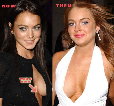 lindsay lohan plastic surgery before and after photos