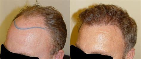wann wachsen die haare nach einer haartransplantation tipps haarausfall eine haarimplantation kann