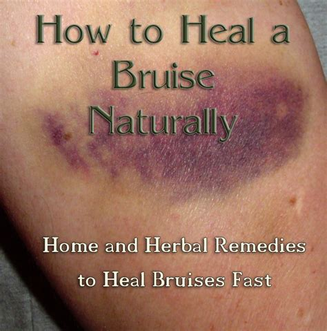 7 Remedies To Help A Wound Heal Quicker by How To Heal A Bruise Naturally Summer Cases And Dr Who