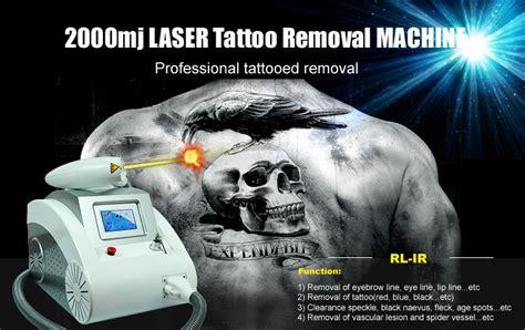 tattoo removal korea beauty equipment nd yag laser korea laser tattoo removal