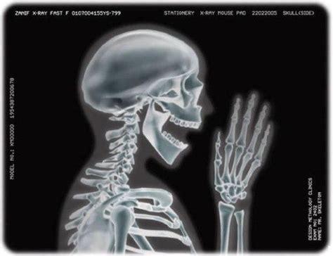 film x ray quiz are x rays really necessary
