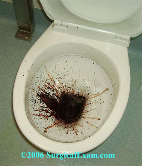 Malaena Stools bloody diarrhea in toilet www imgkid the image kid has it