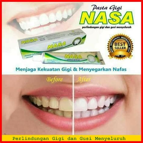Pasta Gigi Nasa Khusus Sakit Gigi pasta gigi nasa herbal perlindungan gusi dan gigi
