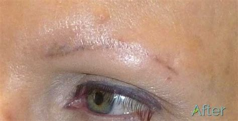 tattoo eyebrows correction title juvessentials is 1 rated for cosmetic tattooing
