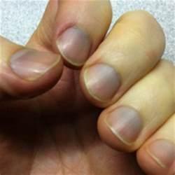 best remedies for blue fingernails blue fingernails