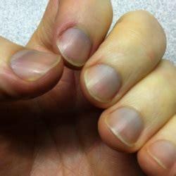 blue nail beds best remedies for blue fingernails blue fingernails