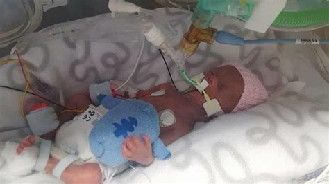 The Horror Birth Causes Bleeding In Babys by Lucky She Wasn T Stillborn Hopes Health System