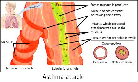 asthma attack file asthma attack png wikimedia commons