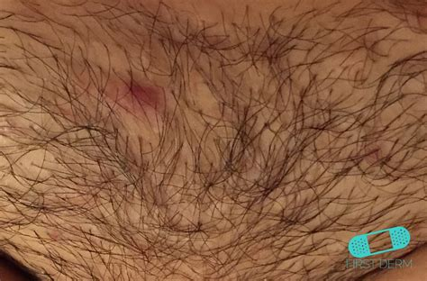dense female pubic hair pictures of thick pubic hair pictures of bushy thick pubic